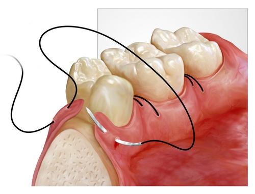 Онемение подбородка после удаления зуба